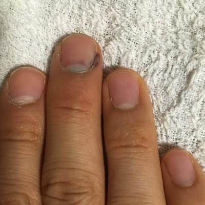 挟ん だ 腫れ 指 内出血 爪下血腫(そうかけっしゅ)とは?症状・原因・治療・病院の診療科目